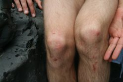 knees scabs